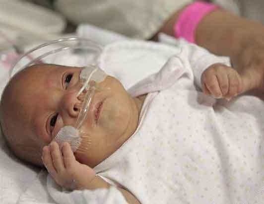 Smallest Baby Girl Melinda